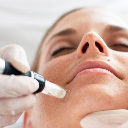 The ultimate treatment to maximize collagen production, with immediate results. Includes electroporation and an anti-aging cocktail and a cold cryo peel-off French mask.